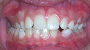 dental-midlines