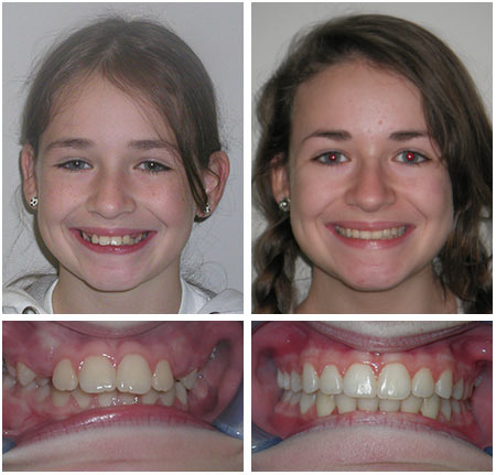 Boulay Before After Photos at Orthodontic Specialist PC inin Brooklyn Staten Island NY and Metuchen NJ